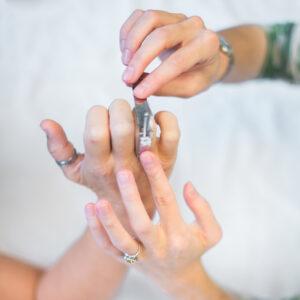 Measuring by Certified Hand Therapist, Ocean NJ